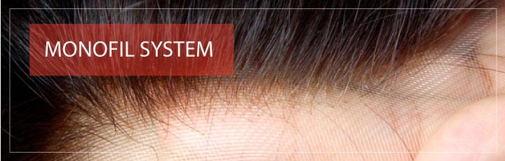 Monofil Haarsystem