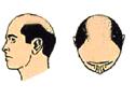 standard hair replacement